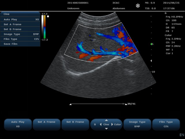 Doppler ultrasound imaging