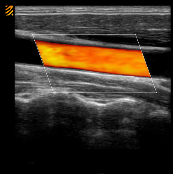 Carotid Color Doppler Med